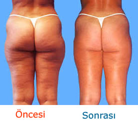 cellulite po wegtrainieren